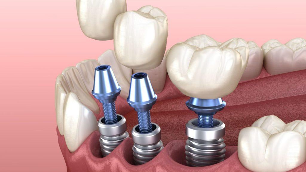 Критерии выбора при имплантации зубов