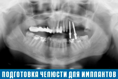 Имплантация зубов — передовой метод