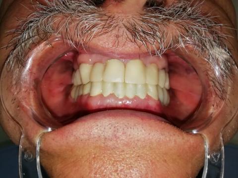 Тотальное протезирование. Пациент 60 лет.