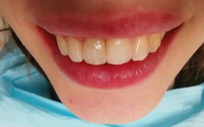 Восстановление зуба. Пациентка 26 лет.