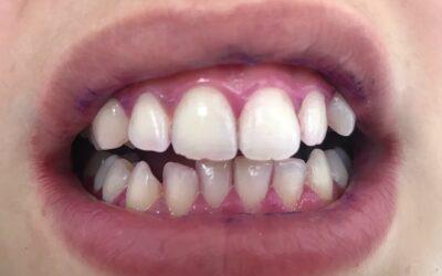 Чистка зубов с применением индикатора зубного налета BioFilm.